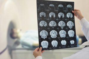 accident vascular cerebral 581369074 300x198 - Accident vascular cerebral (AVC): cum tratezi si cum previi un atac cerebral